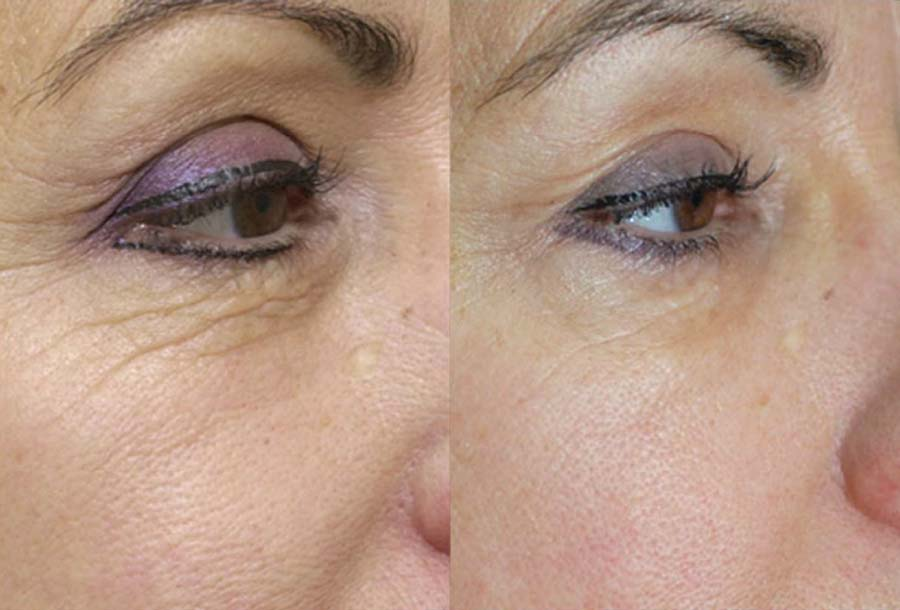 skinade before and after pic 2