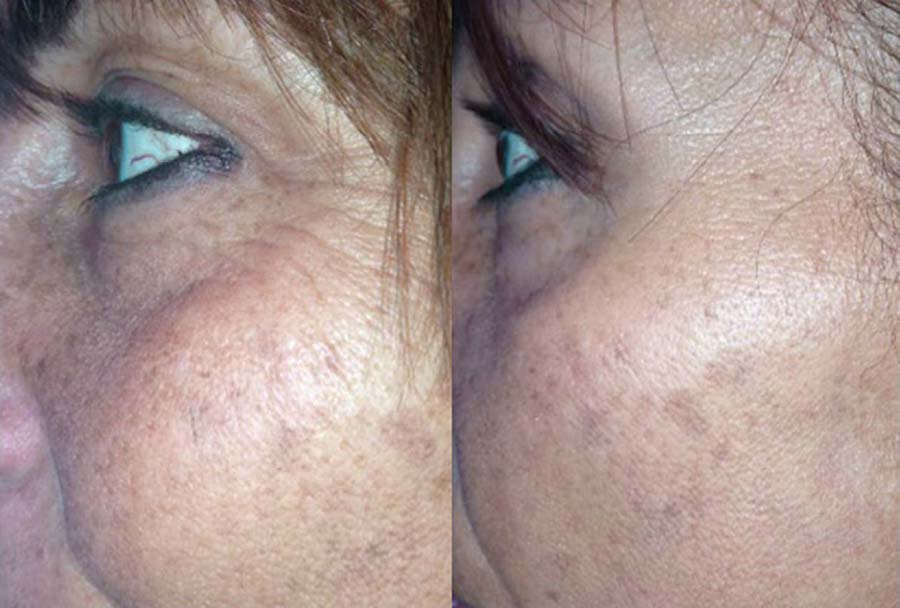 skinade before and after pic 1