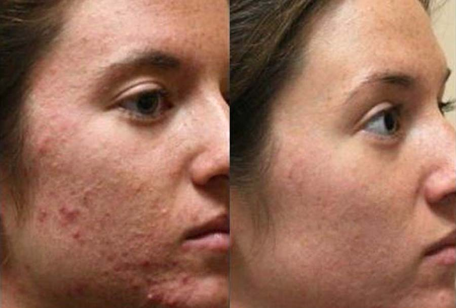 skinade before and after pic 3